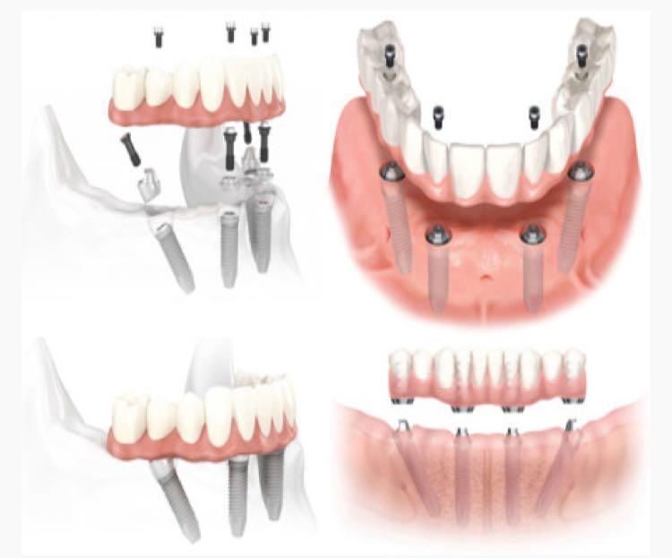 Implantologia Brescia